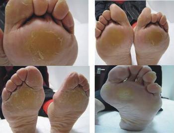 常见脚病介绍-脚垫