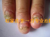 常见脚病介-灰指甲
