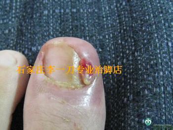 常见脚病介绍-甲沟炎